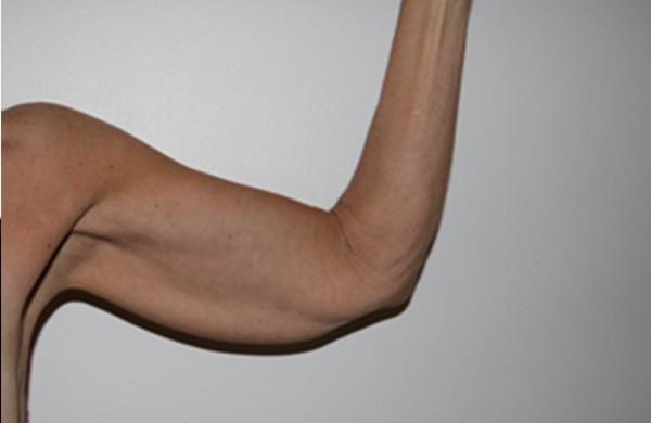 fedt på armene