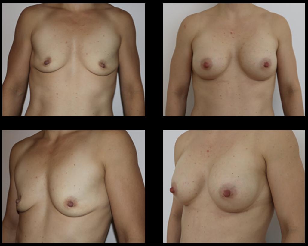 Brystoperation før og efter billede