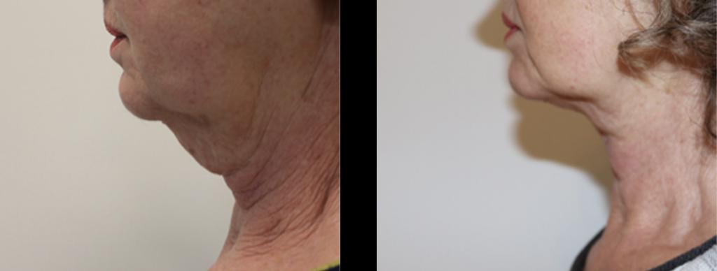 hage fedt reduktion før og efter billede