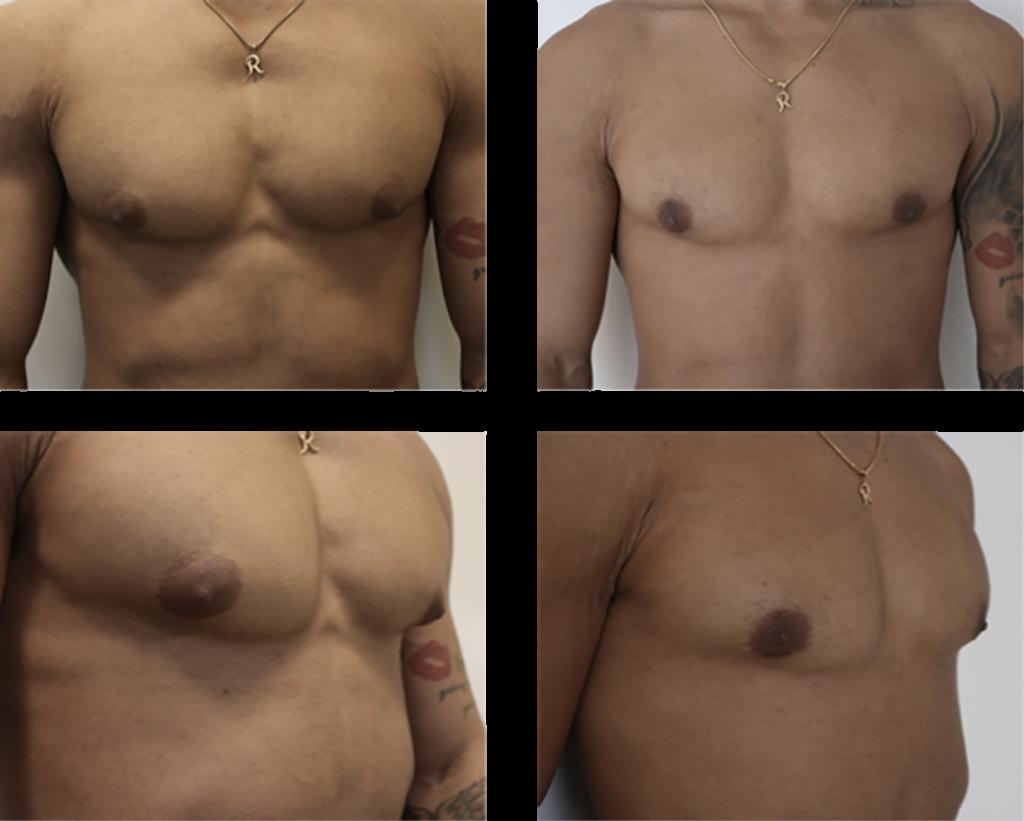 mand uønsket bryst før og efter billede