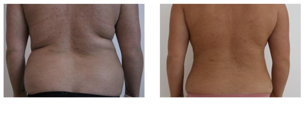 talje fedt reduktion før og efter billede