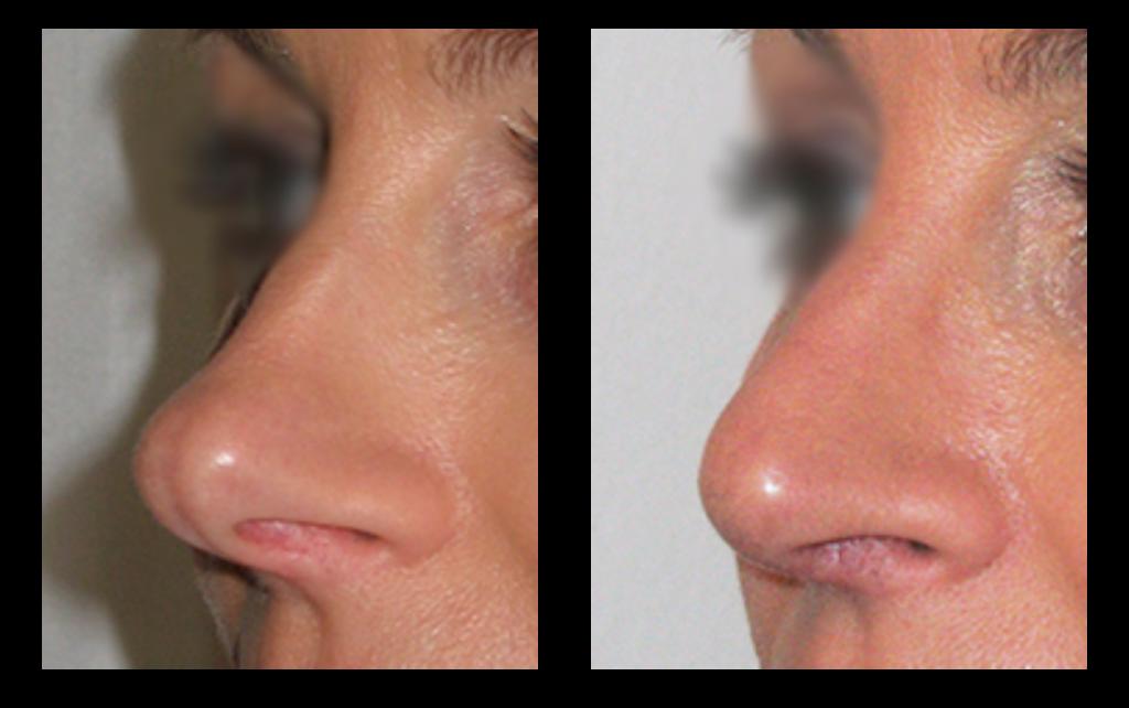 næse kirurgi før og efter billede