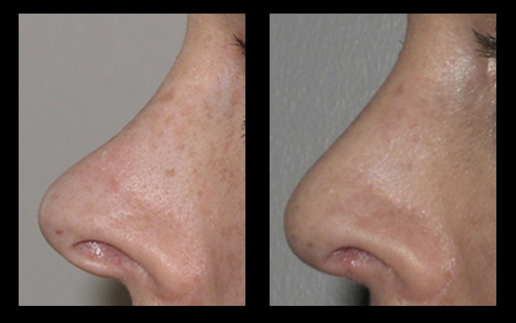 næsekirurgi før og efter billede