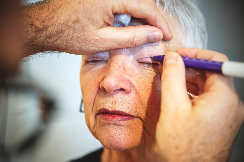 Øjenlågs optegning operation
