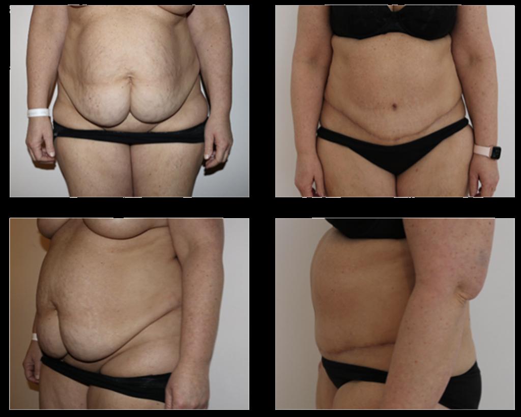mave plastik operation før og efter billede