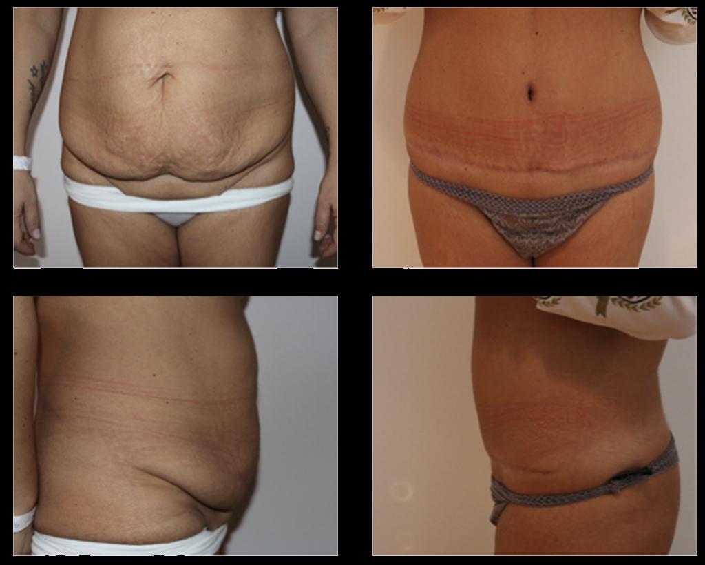 mave plastik operation før og efter billeder