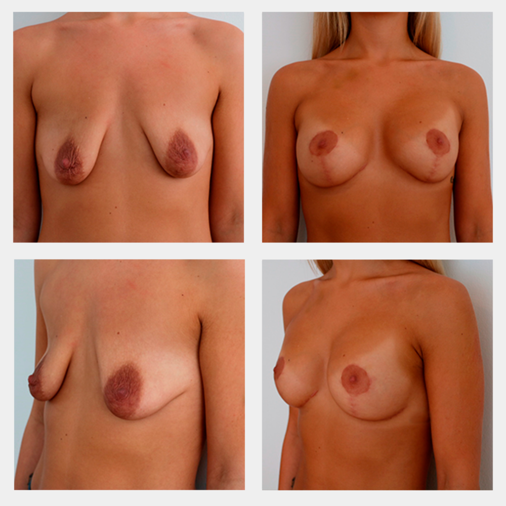 før og efter billede af brystforstørrelse