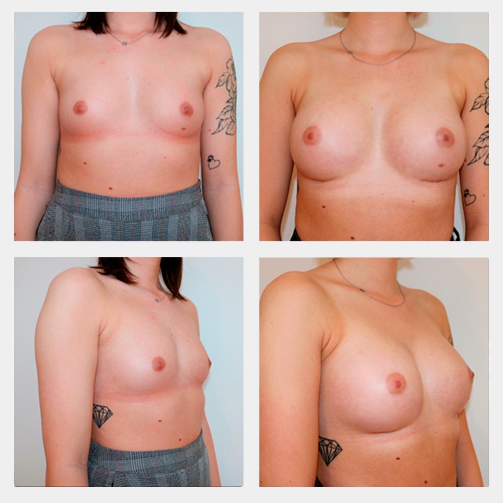 Før og efter billede brystforstørrelse